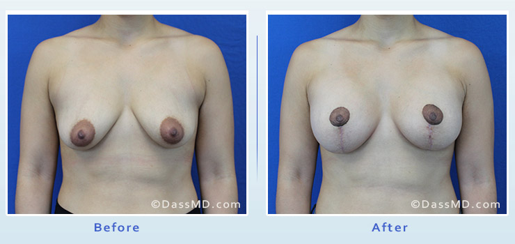 Breast Reduction case 3 before after image 1