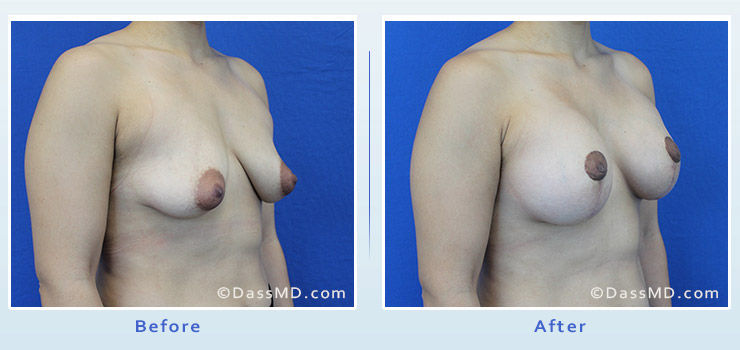 Breast Reduction case 3 before after image 2