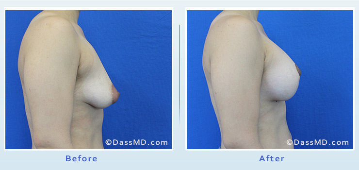 Breast Reduction case 3 before after image 3