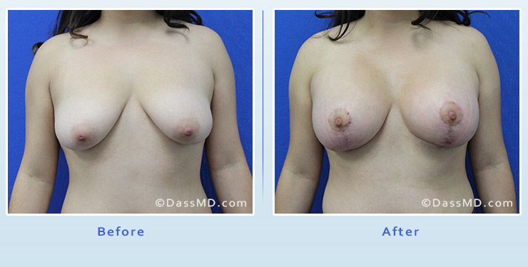 Breast Augmentation with Lift case 4 before after image 1