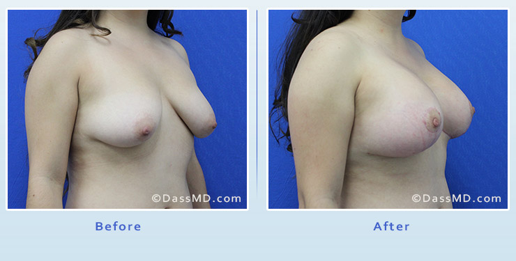 Breast Augmentation with Lift case 4 before after image 2