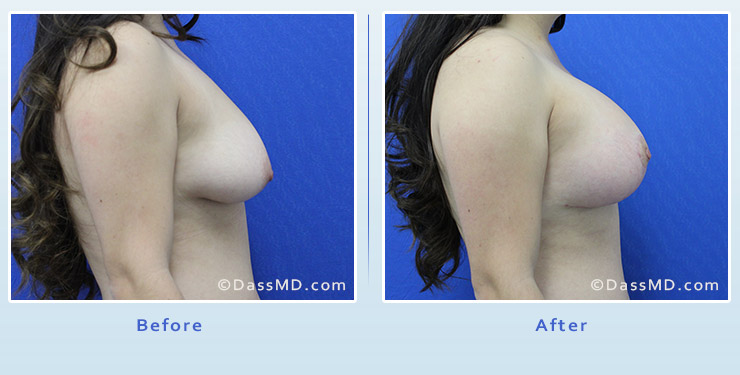 Breast Augmentation with Lift case 4 before after image 3