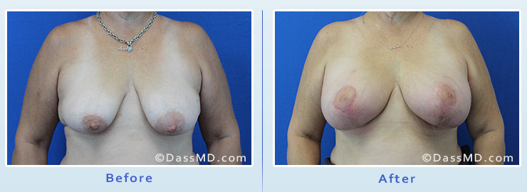 Breast Augmentation with Lift case 5 before after image 1