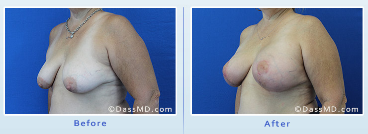 Breast Augmentation with Lift case 5 before after image 2