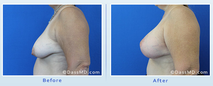 Breast Augmentation with Lift case 5 before after image 3