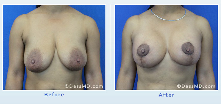 Breast Augmentation with Lift case 6 before after image 1