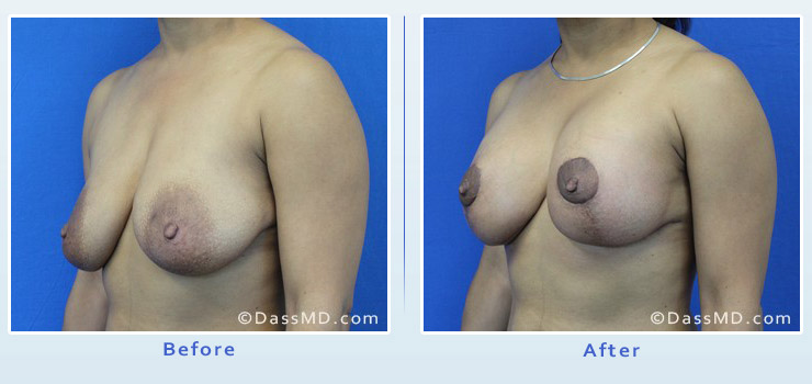 Breast Augmentation with Lift case 6 before after image 2