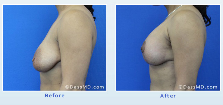 Breast Augmentation with Lift case 6 before after image 3