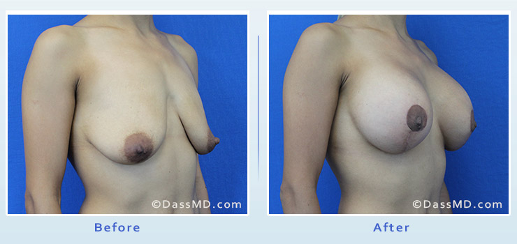 Breast Augmentation with Lift case 7 before after image 2