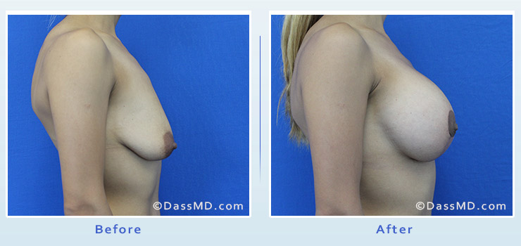Breast Augmentation with Lift case 7 before after image 3