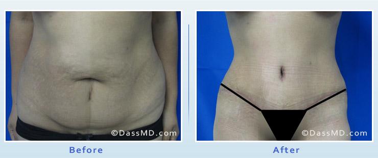 Dr. Dennis Dass, MD Tummy Tuck image