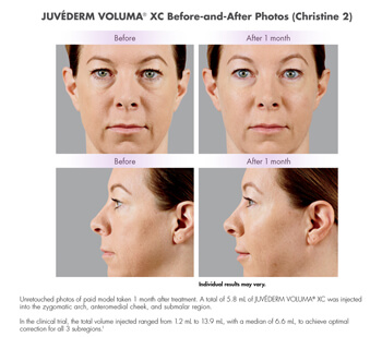 Juvederm before after image 1