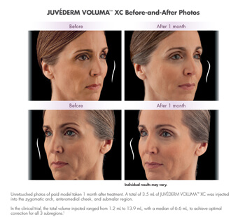 Juvederm before after image 3