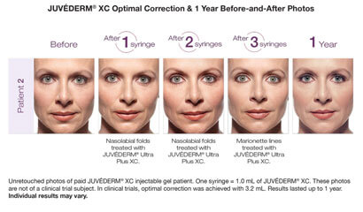 Juvederm Ultra Plus XC before after image 1