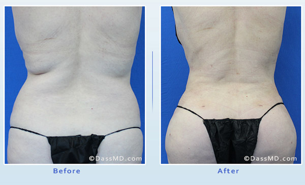 Dr. Dennis Dass, MD Back Liposuction