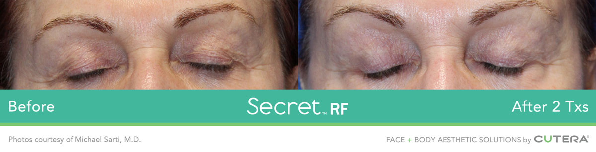 Secret RF before after image 13