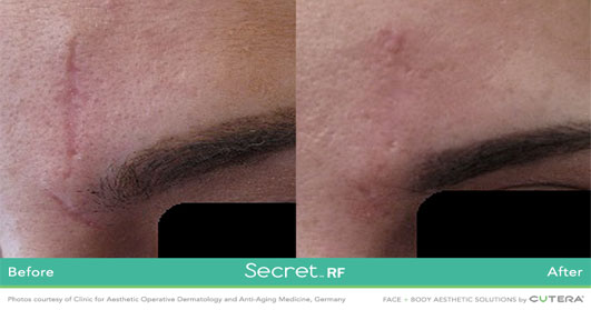 Secret RF before after image 3