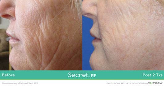 Secret RF before after image 4