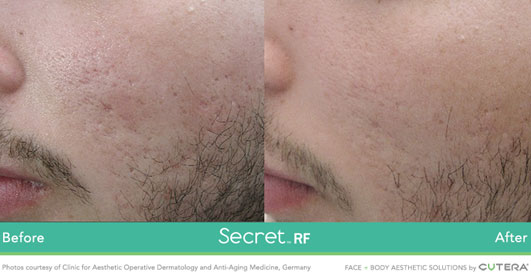 Secret RF before after image 7