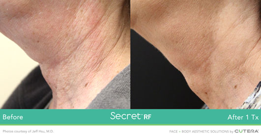 Secret RF before after image 9