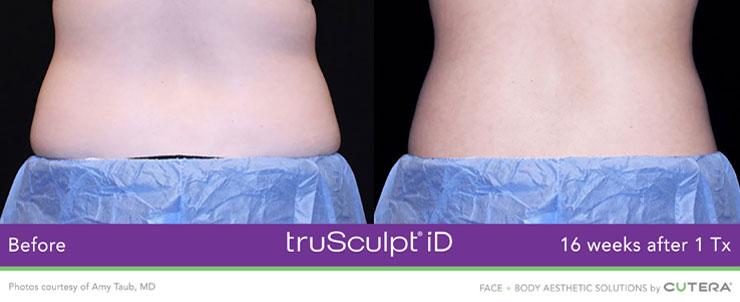 Dr. Dennis Dass, NtruSculpt iD image 1