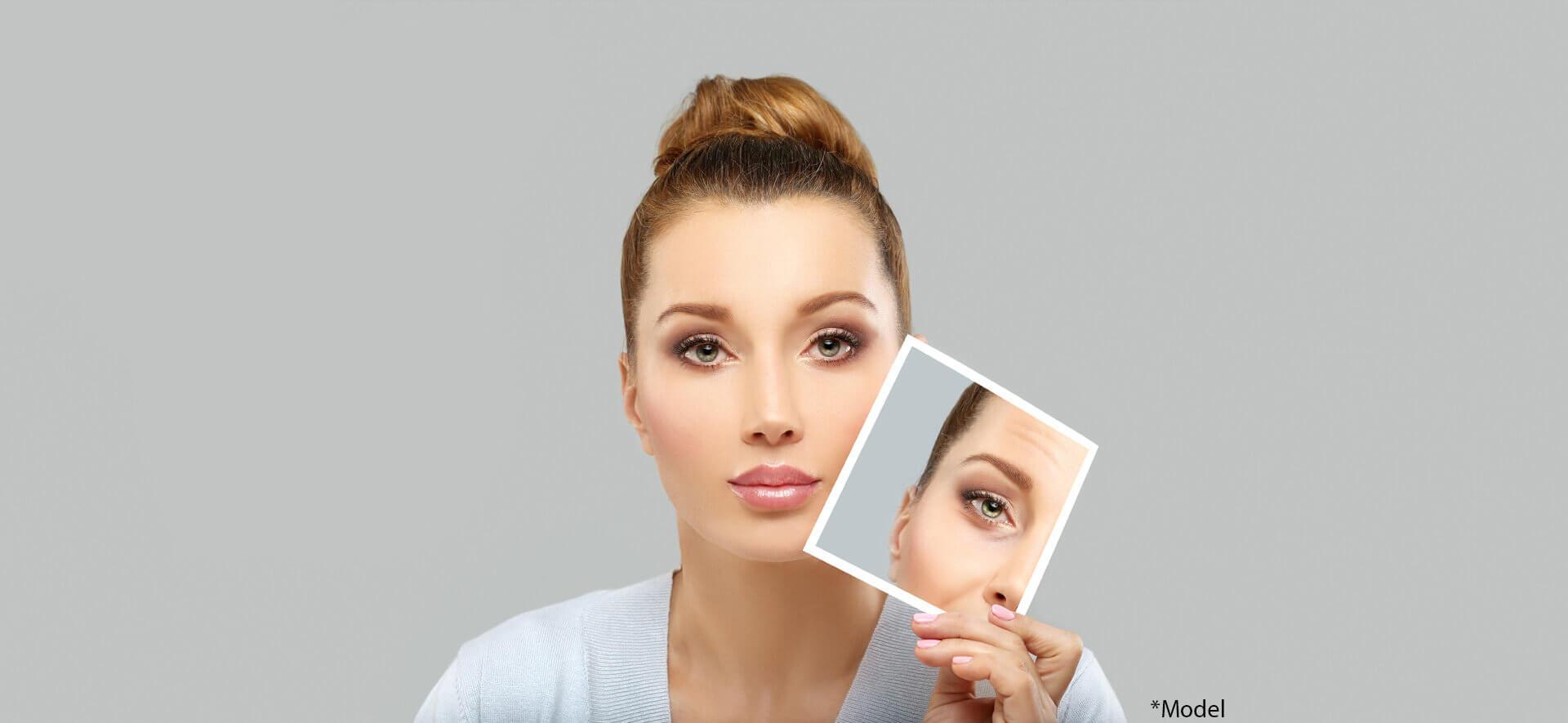 Lady showing image of lower Eyelid Blepharoplasty