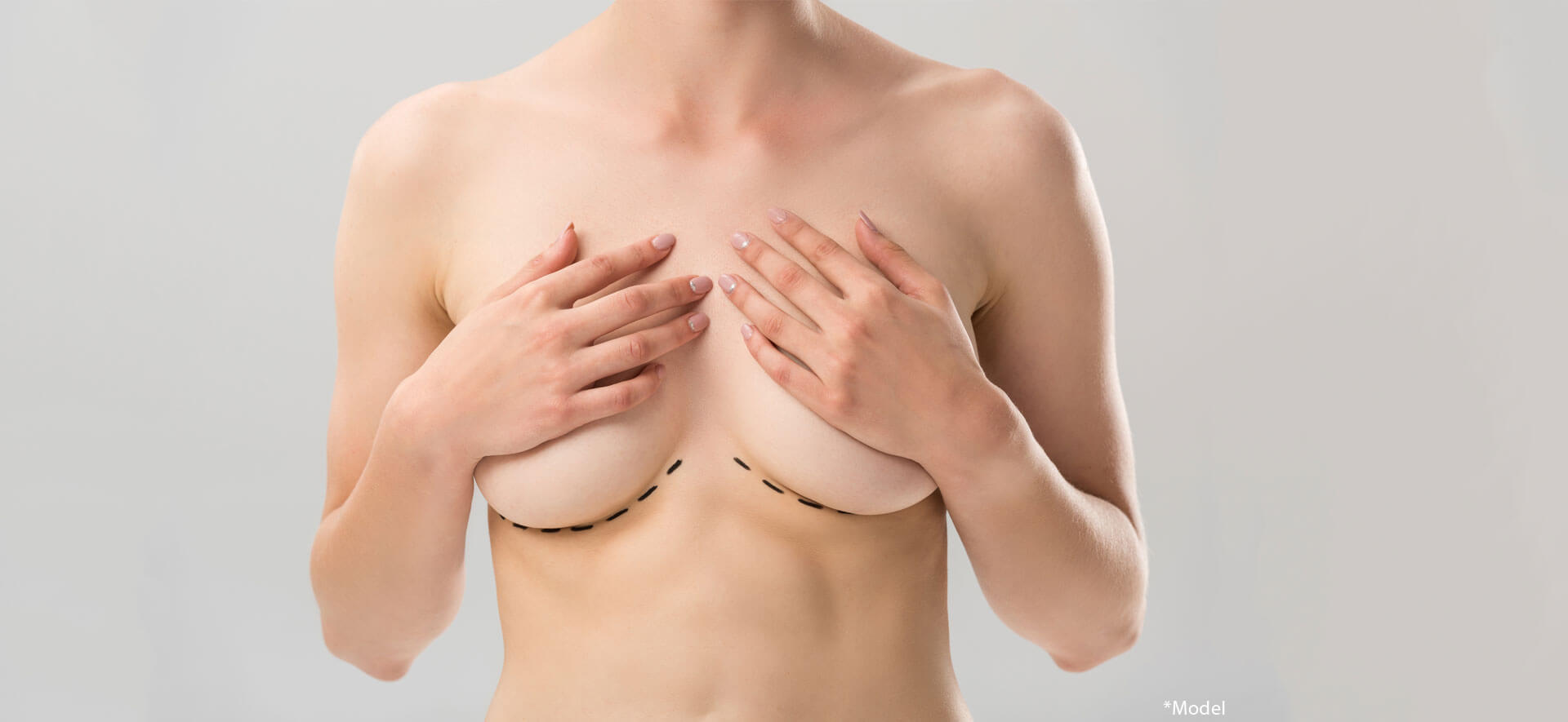 Partial view of naked woman with marks under breast