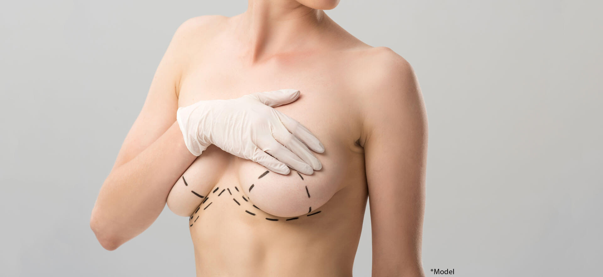 Cropped view of woman in latex glove with marks on breast