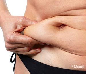 Important Facts About Tummy Tuck in Beverly Hills area