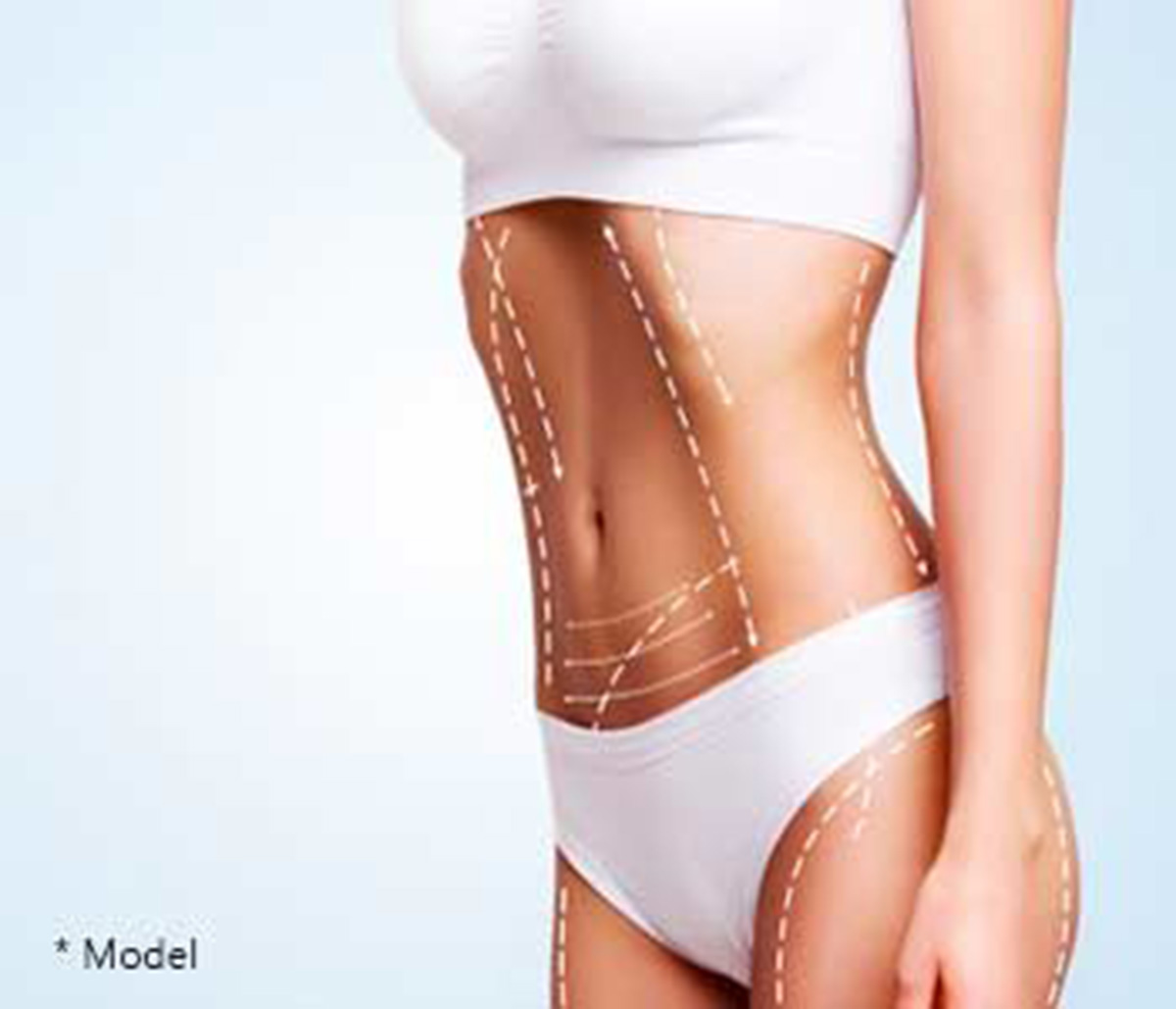 Plastic Surgeon in Beverly Hills Explains the Benefits of Liposuction